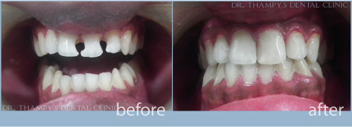 Dr Thampys Dental Clinic Patient Gallery Of Dental